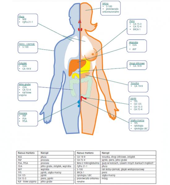 diagram dotyczący diagnostyki nowotworowej